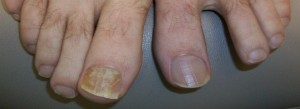 Toenail Fungus Before Treatment